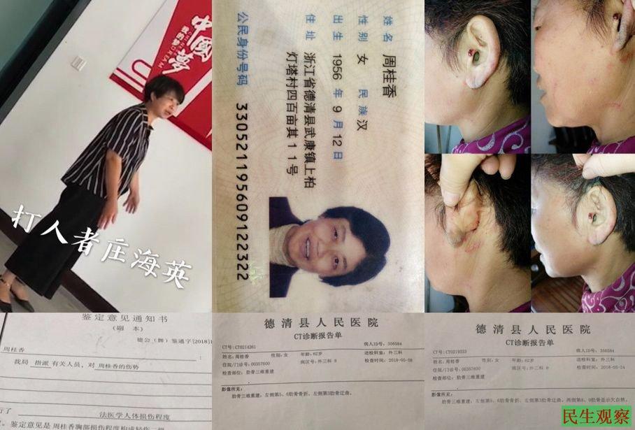 浙江周桂香被警察家属打伤 发帖后遭传唤