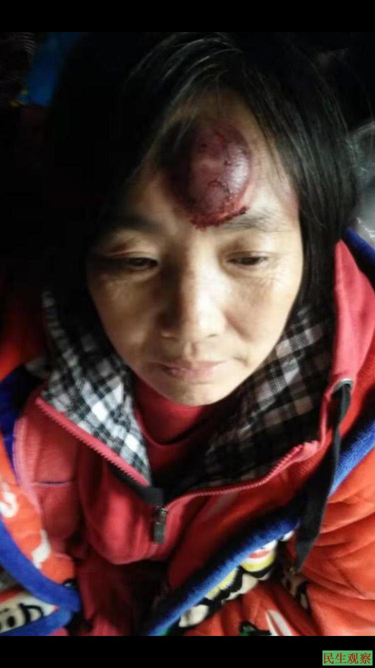 重庆张翠英进京维权遭殴打刑拘